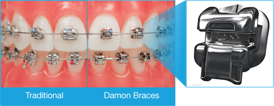 Comparison of different types of braces